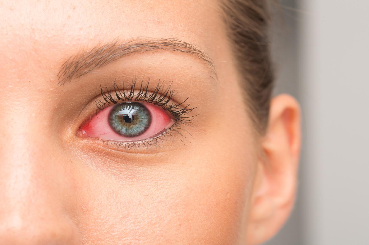 femme avec les yeux rouges